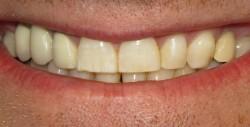 Protezuoti dantys